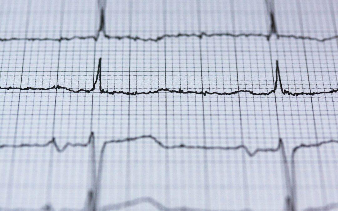 Irregular Heartbeats and Chiropractic